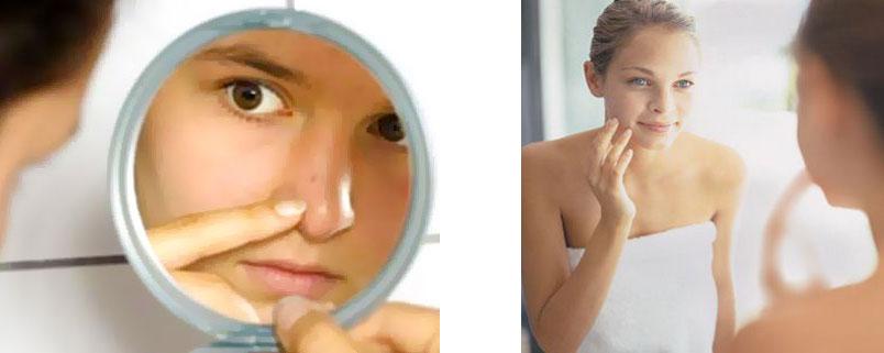 Sådan fjerner man hudorme og bumser?