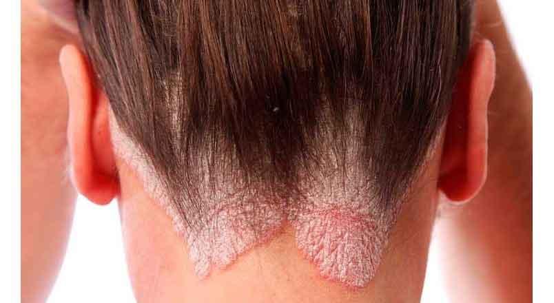 Behandling med Argan Olie mod psoriasis